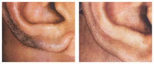 At Aesthetic Awakening | Laser Hair Removal West Palm Beach we offer laser hair removal treatment in west palm beach.