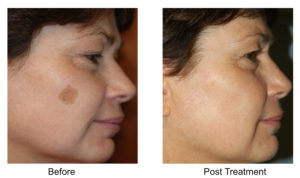 At Aesthetic Awakening, we offer treatment for a breakdown pigmentation on face and anybody area quickly and painlessly. Call 561.331.3011 to schedule an appointment.