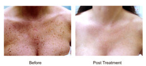 At Aesthetic Awakening | Laser Hair Removal West Palm Beach we offer single spot treatments or large skin areas for patients with freckles or severe sun exposure. This fast and virtually painless treatment is offered on any body area and any skin type.