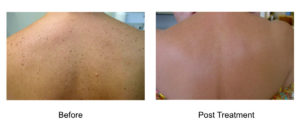 At Aesthetic Awakening | Laser Hair Removal West Palm Beach our beautiful sunny skies in Florida can sometimes leave permanent memories on our skin. Our Gentleman pro laser removes Dark, Age and Sun Spots on ALL skin types in just minutes.