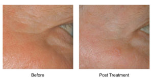 At Aesthetic Awakening, we offer Fast and painless laser treatment. High-intensity heat intervals promote collagen growth and skin tightening. Call 561.331.3011 to schedule an appointment.