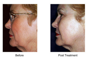 We offer skin rejuvenation treatment in West Palm Beach.