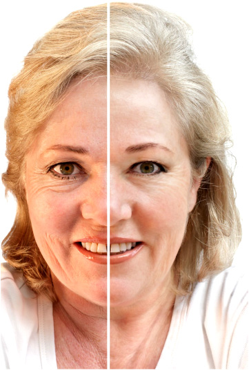 skin rejuvenation treatment west palm beach