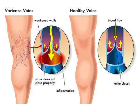 varicose and spider veins west palm beach